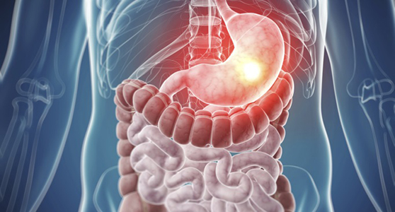 Gastro-Intestinal (GI) Cancer