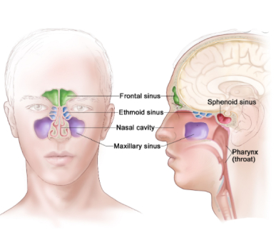 Nasal and Paranasal Sinus Cancer